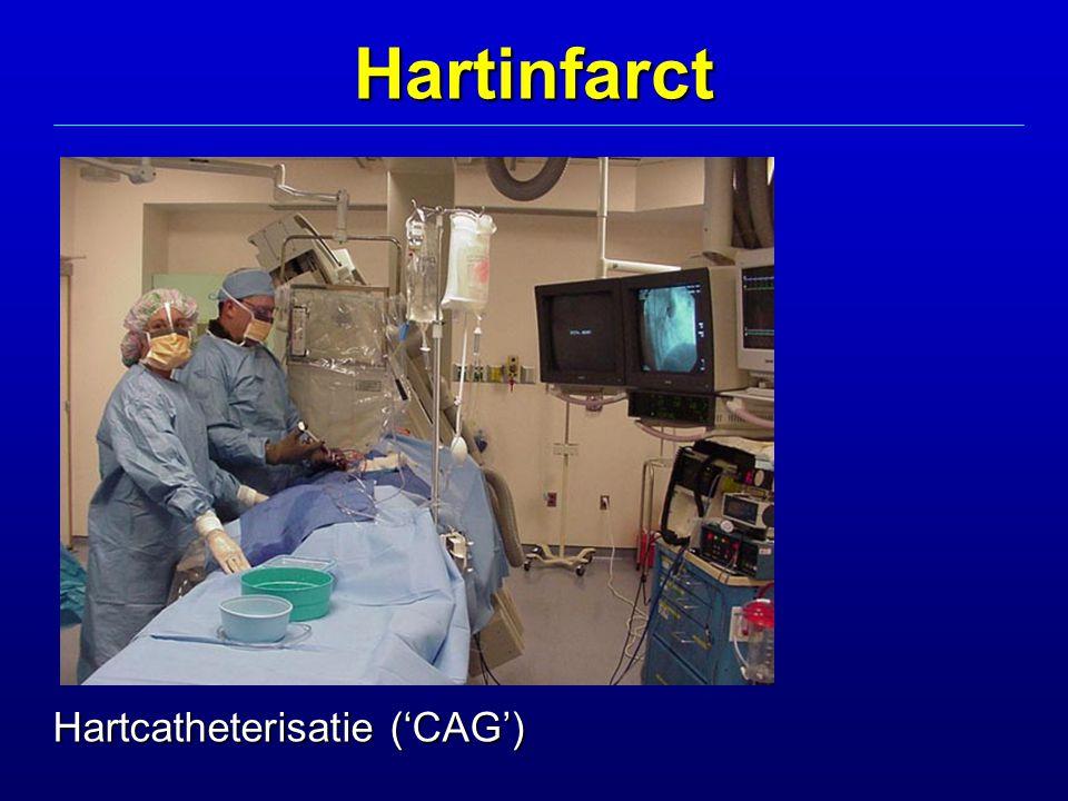 Hartcatheterisatie ('CAG') Hartinfarct