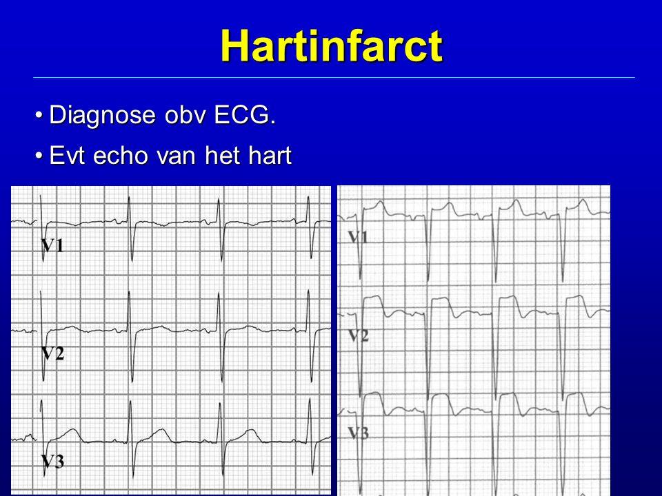 Hartinfarct Diagnose obv ECG.Diagnose obv ECG. Evt echo van het hartEvt echo van het hart