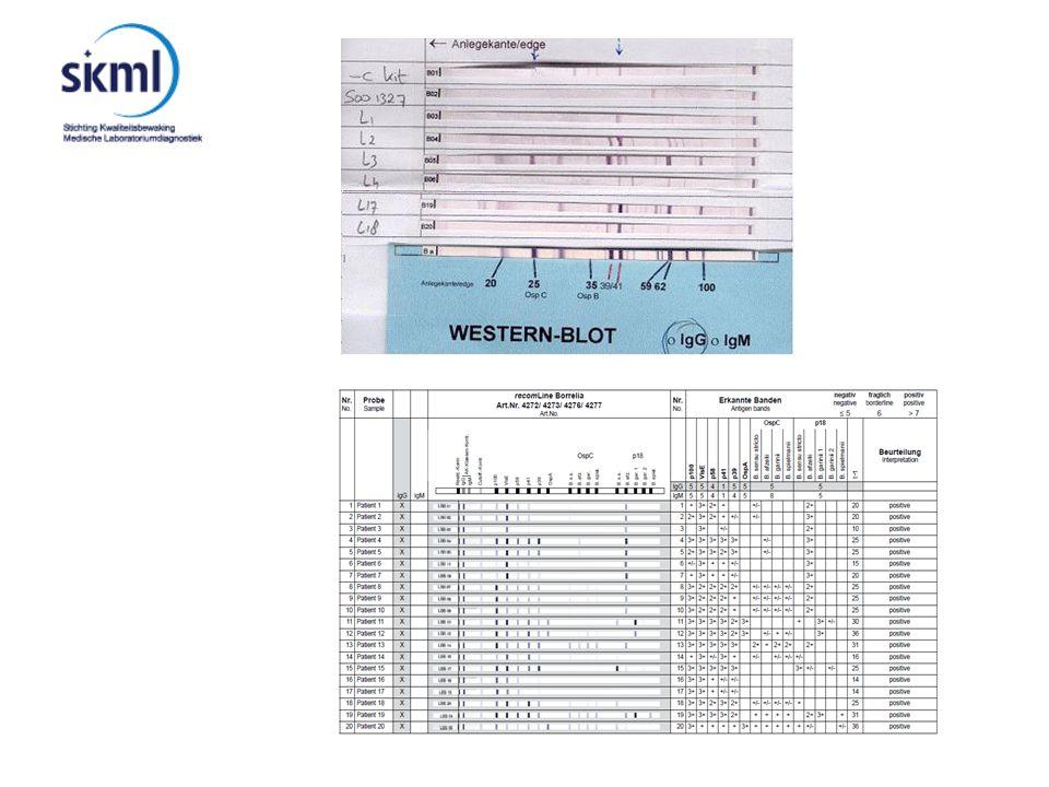 Rondzending 25 sera 2 ACA 7 Lyme artritis 1 neuroborreliose 5 EM 2 artritis non-lyme 3 bloeddonoren 5 sera verdunningsreeks van ACA patient