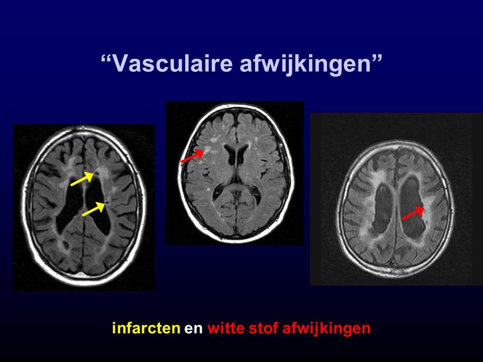 """""""Vasculaire afwijkingen"""" infarcten en witte stof afwijkingen"""