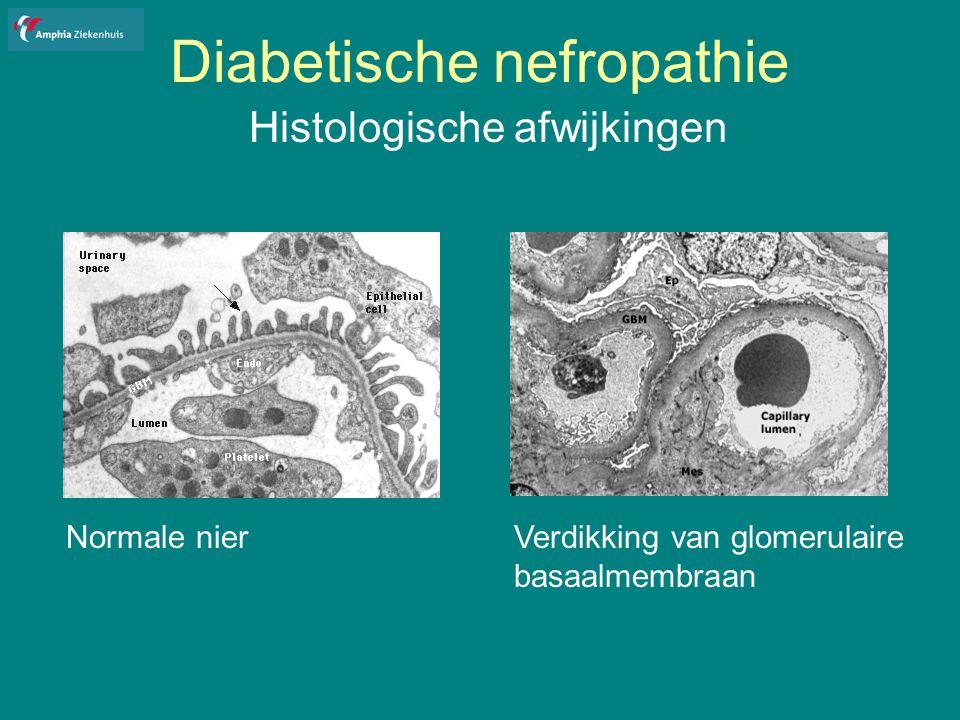 Diabetische nefropathie Histologische afwijkingen Normale nierVerdikking van glomerulaire basaalmembraan