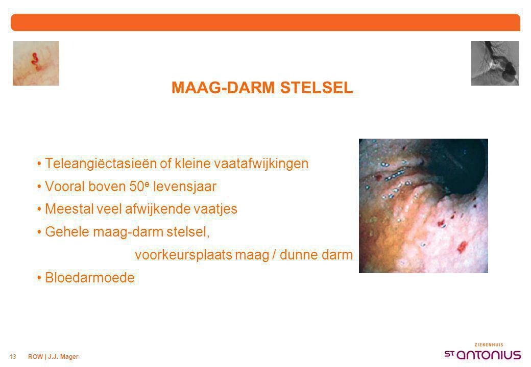 ROW | J.J. Mager13 MAAG-DARM STELSEL Teleangiëctasieën of kleine vaatafwijkingen Vooral boven 50 e levensjaar Meestal veel afwijkende vaatjes Gehele m
