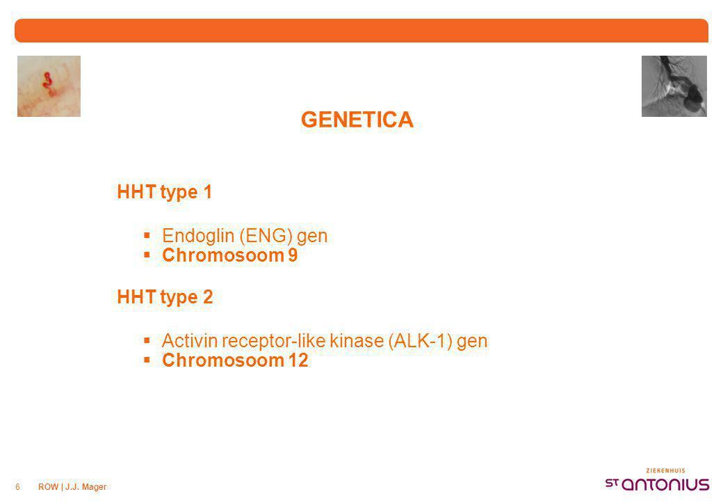 ROW | J.J. Mager6 GENETICA HHT type 1  Endoglin (ENG) gen  Chromosoom 9 HHT type 2  Activin receptor-like kinase (ALK-1) gen  Chromosoom 12