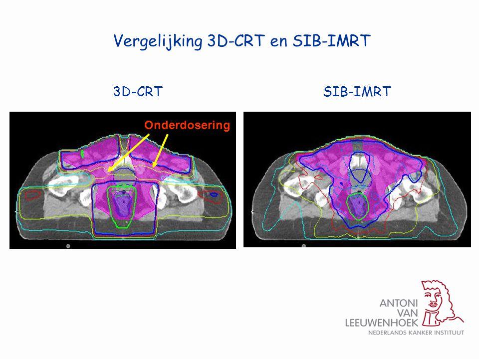 3D-CRTSIB-IMRT Onderdosering Vergelijking 3D-CRT en SIB-IMRT