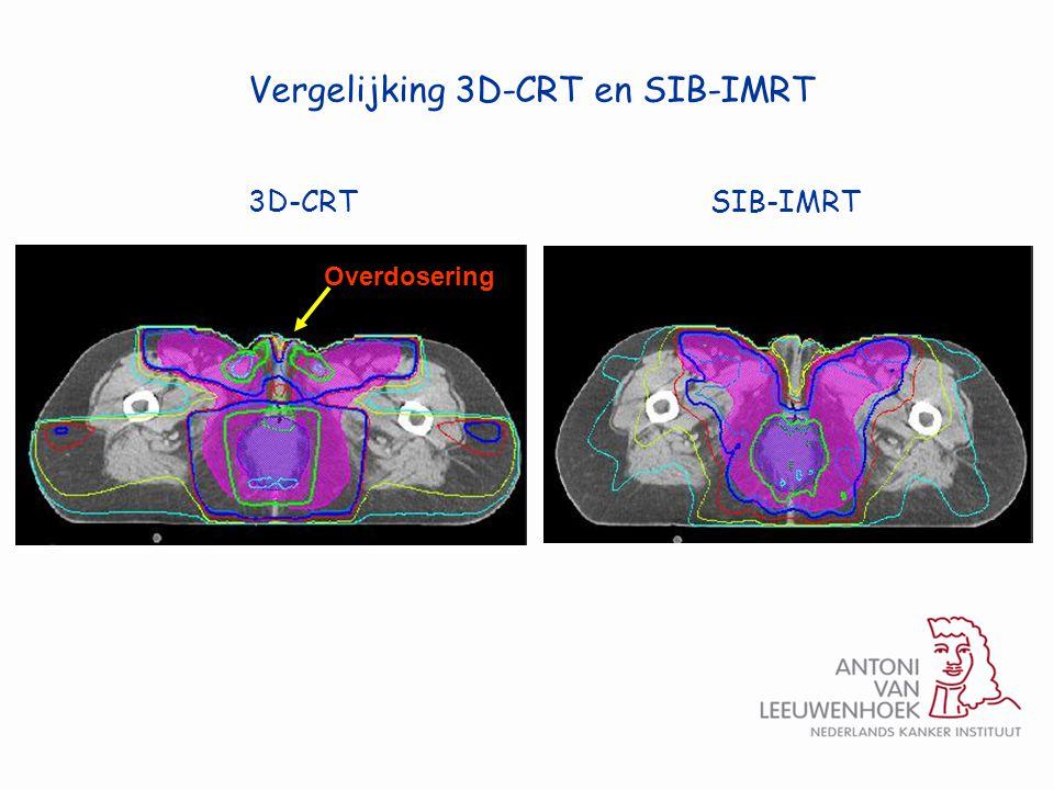 Overdosering Vergelijking 3D-CRT en SIB-IMRT 3D-CRTSIB-IMRT
