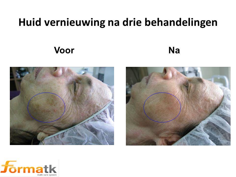 Huid vernieuwing na drie behandelingen ר Voor Na