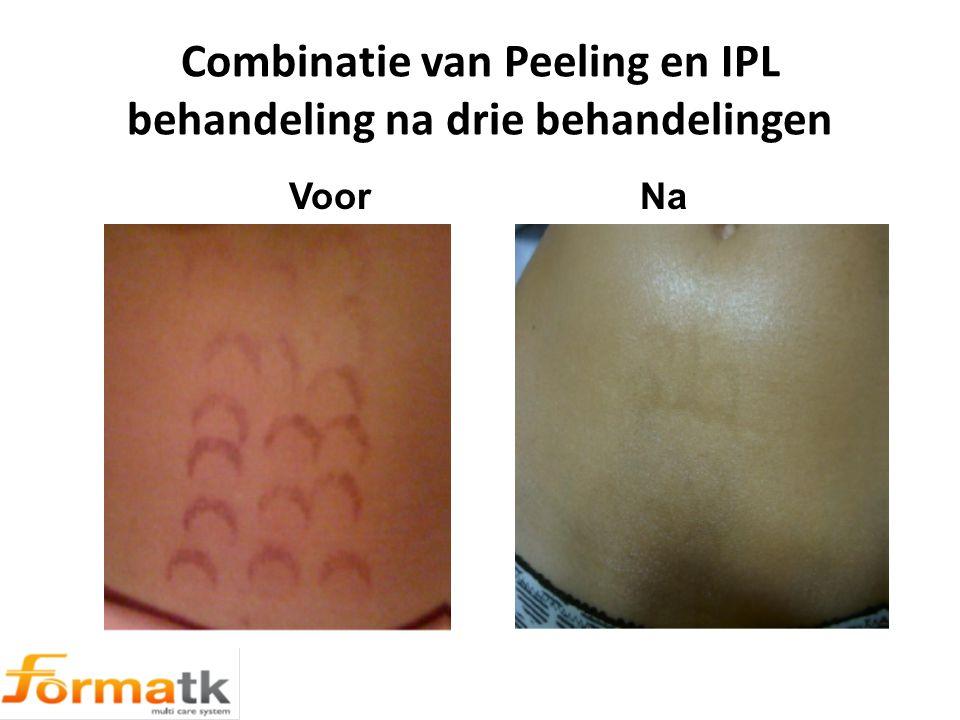 Combinatie van Peeling en IPL behandeling na drie behandelingen Voor Na