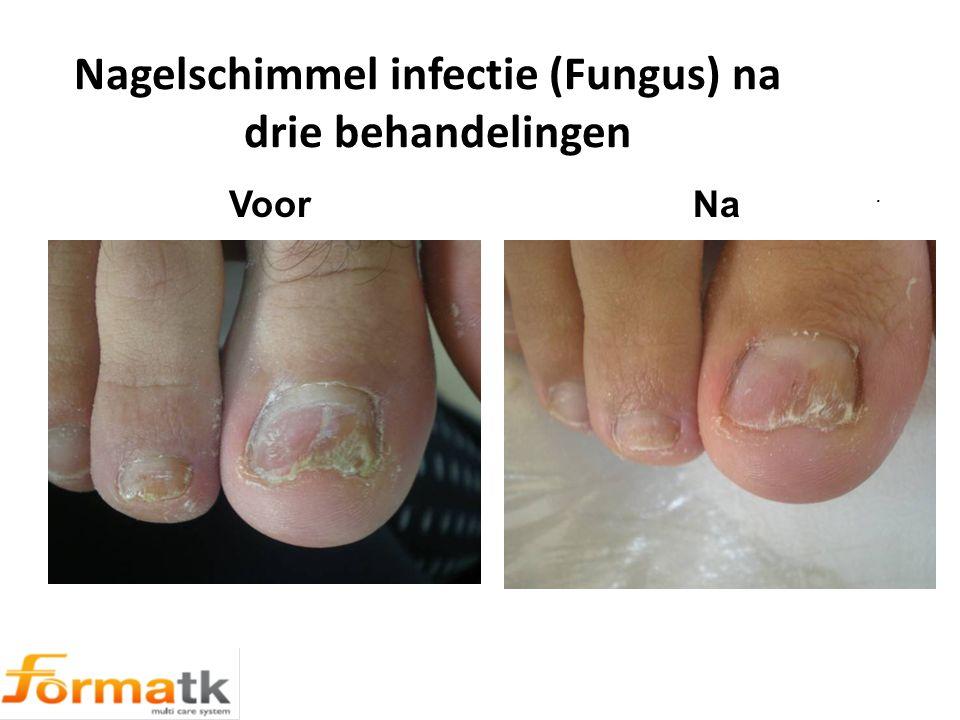 Nagelschimmel infectie (Fungus) na drie behandelingen. Voor Na