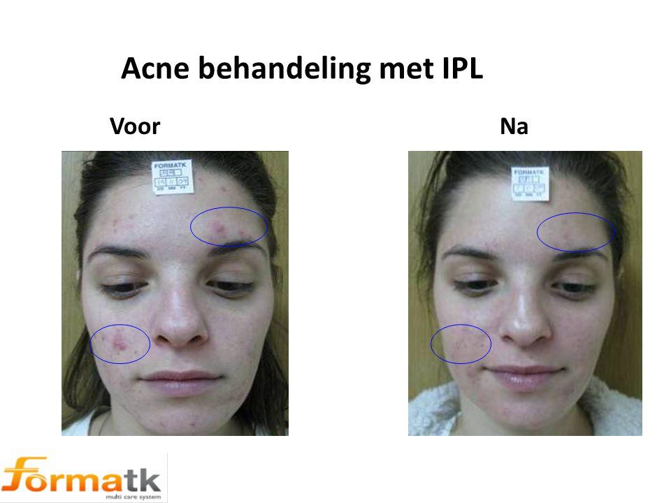 Acne behandeling met IPL Voor Na