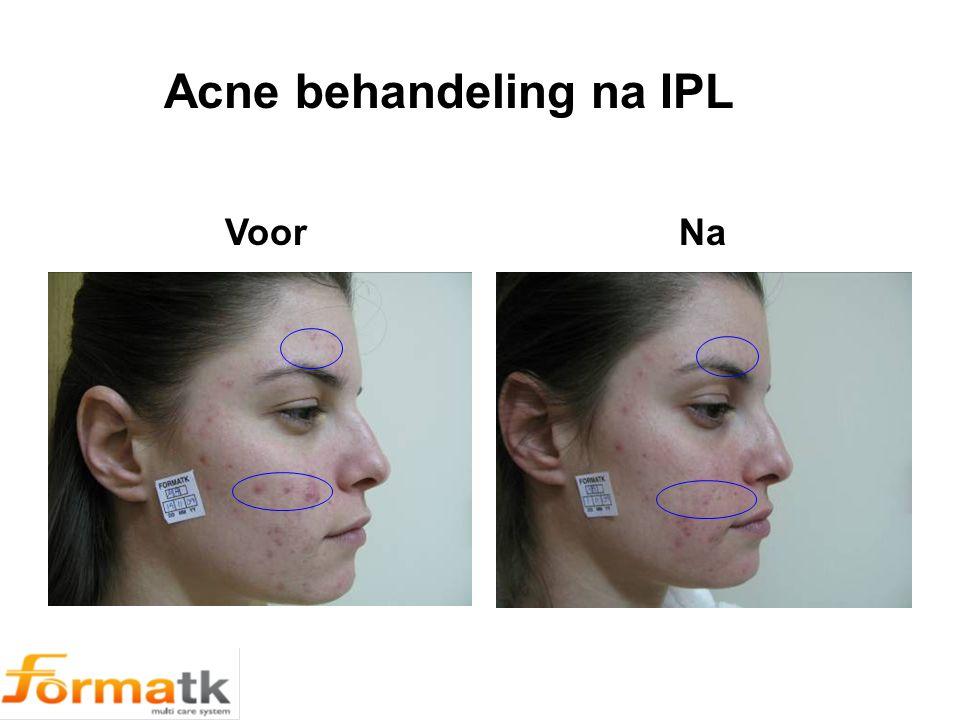 Voor Na Acne behandeling na IPL