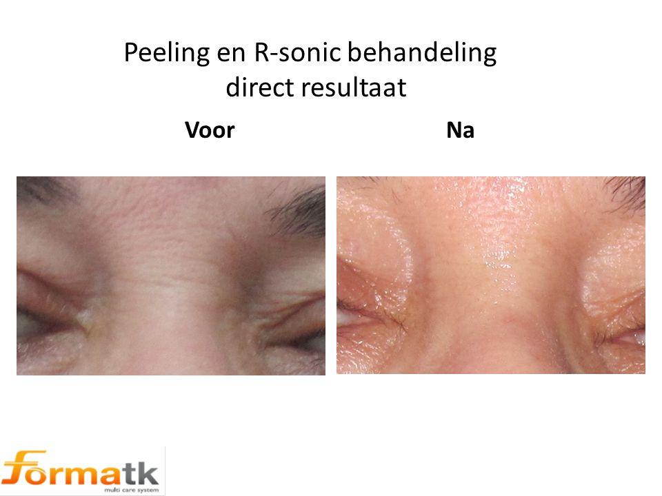 Peeling en R-sonic behandeling direct resultaat Voor Na