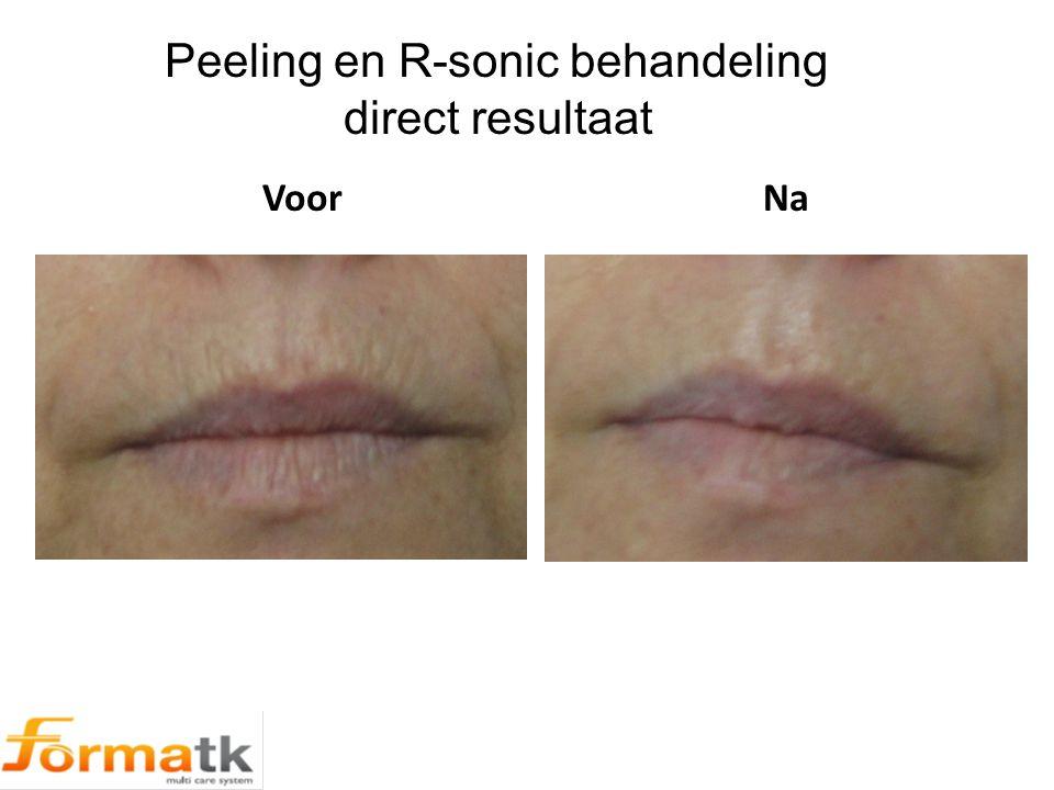 Peeling en R-sonic behandeling direct resultaat