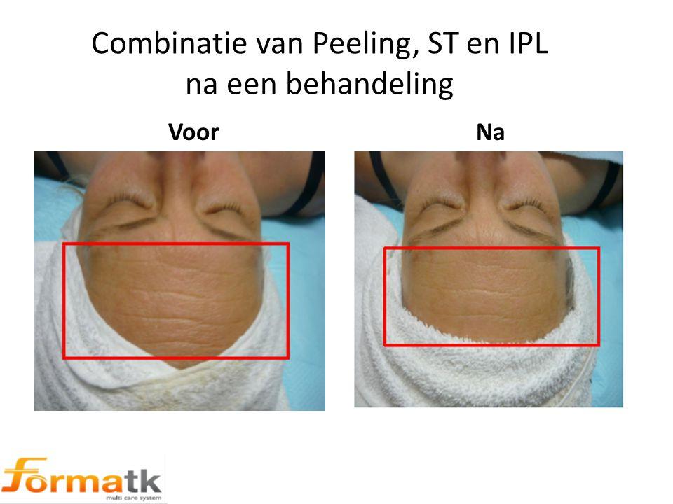 Combinatie van Peeling, ST en IPL na een behandeling Voor Na