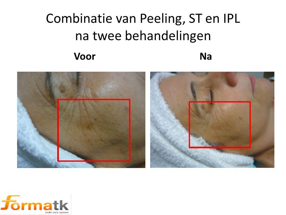 Combinatie van Peeling, ST en IPL na twee behandelingen Voor Na