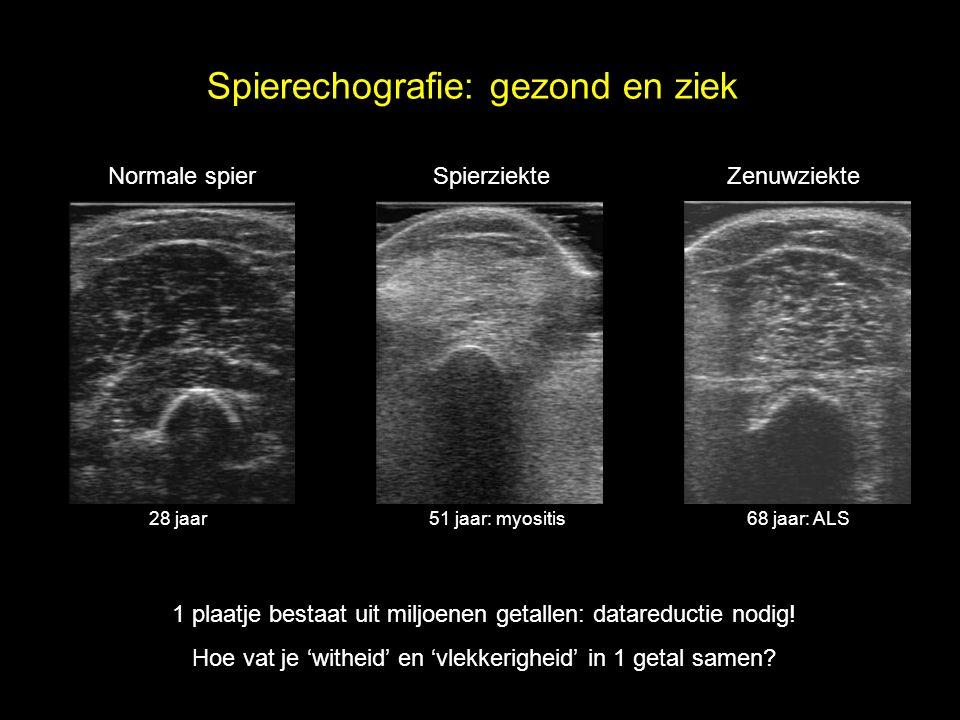 Normale spierSpierziekteZenuwziekte 28 jaar51 jaar: myositis68 jaar: ALS 1 plaatje bestaat uit miljoenen getallen: datareductie nodig! Hoe vat je 'wit