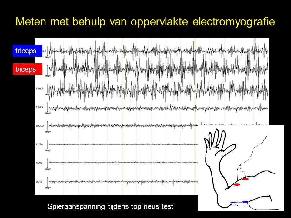 biceps triceps Meten met behulp van oppervlakte electromyografie Spieraanspanning tijdens top-neus test