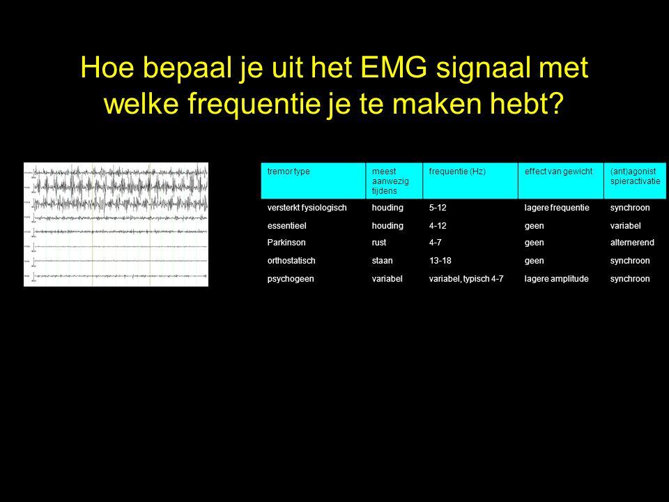 Hoe bepaal je uit het EMG signaal met welke frequentie je te maken hebt? tremor typemeest aanwezig tijdens frequentie (Hz)effect van gewicht(ant)agoni