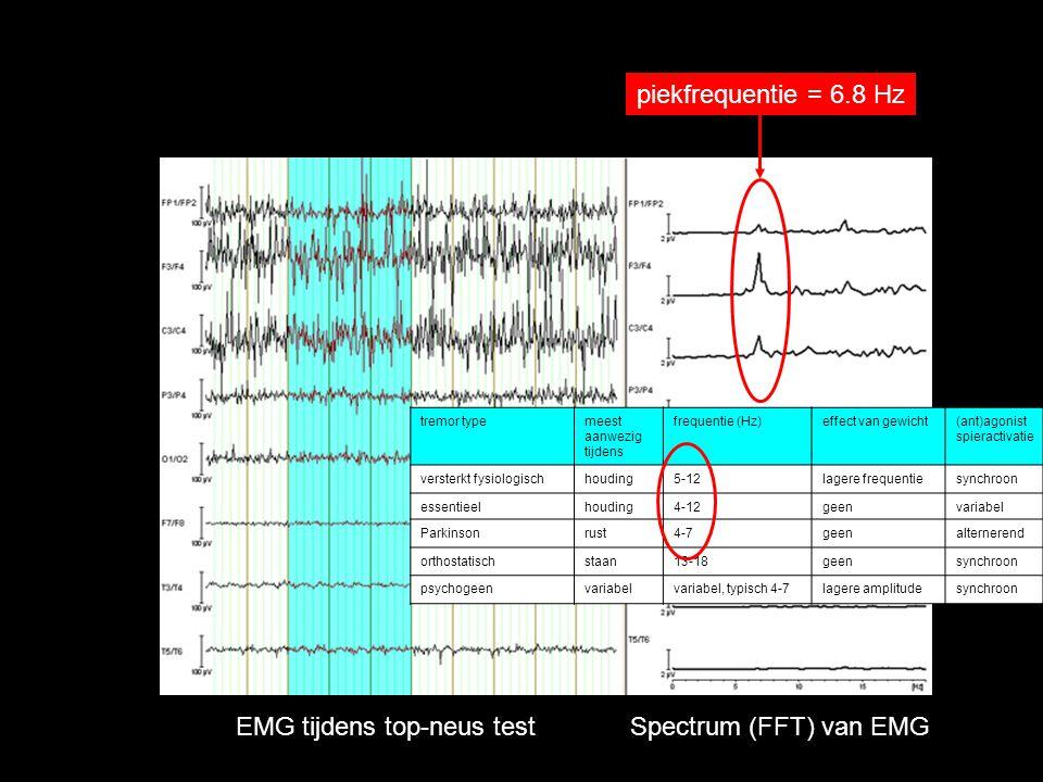 EMG tijdens top-neus test Spectrum (FFT) van EMG piekfrequentie = 6.8 Hz tremor typemeest aanwezig tijdens frequentie (Hz)effect van gewicht(ant)agoni