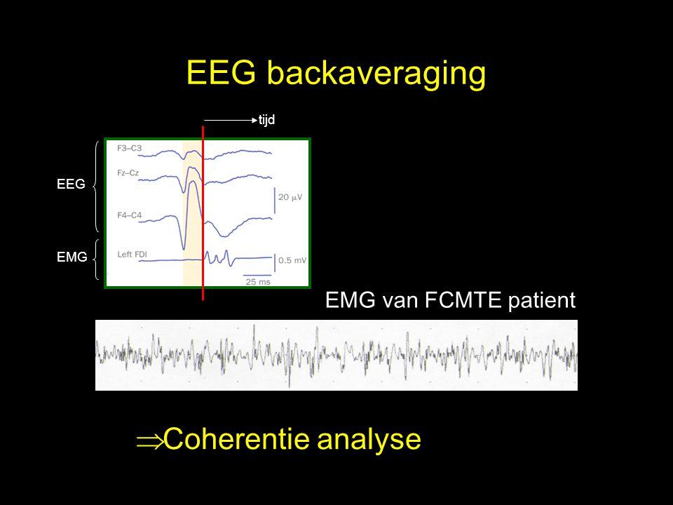 EEG backaveraging EMG van FCMTE patient  Coherentie analyse tijd EEG EMG