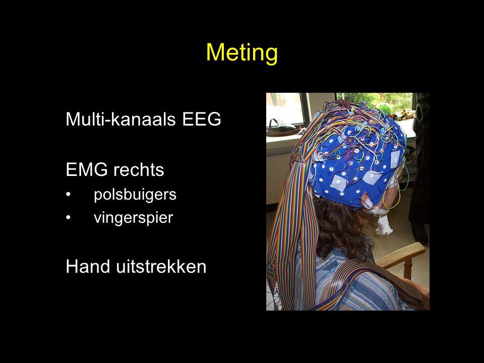 Meting Multi-kanaals EEG EMG rechts polsbuigers vingerspier Hand uitstrekken