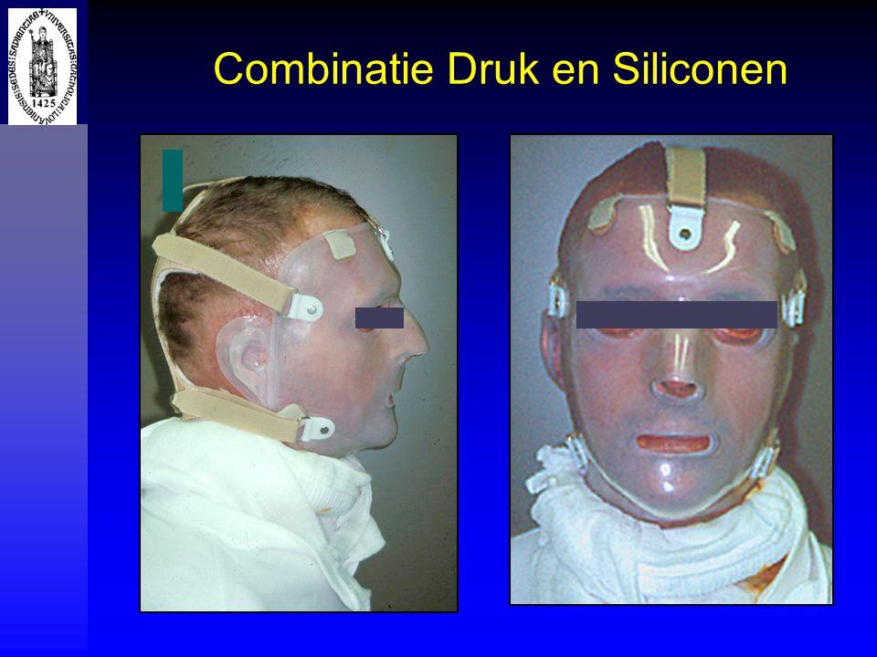 Combinatie Druk en Siliconen
