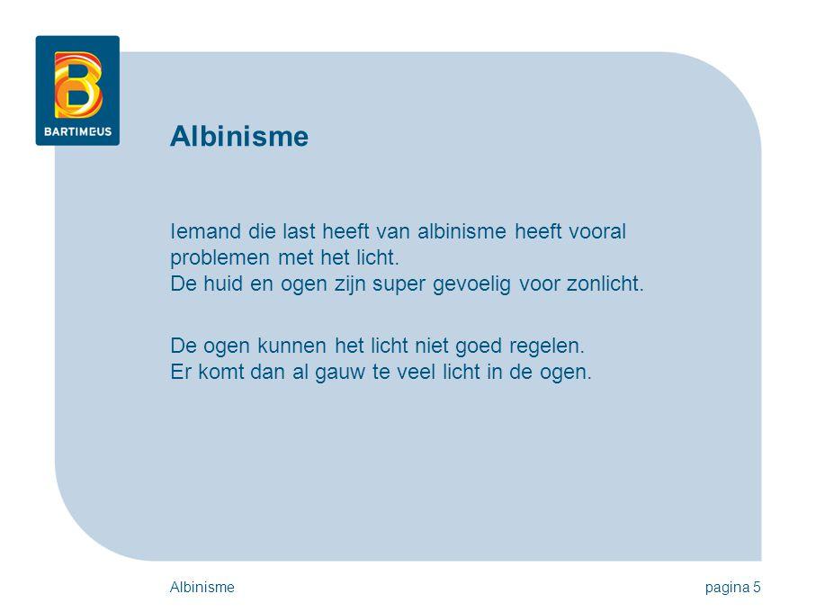 Albinismepagina 5 Albinisme Iemand die last heeft van albinisme heeft vooral problemen met het licht.
