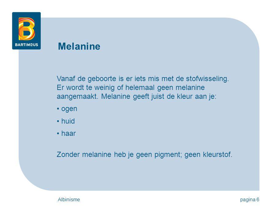Albinismepagina 6 Vanaf de geboorte is er iets mis met de stofwisseling. Er wordt te weinig of helemaal geen melanine aangemaakt. Melanine geeft juist