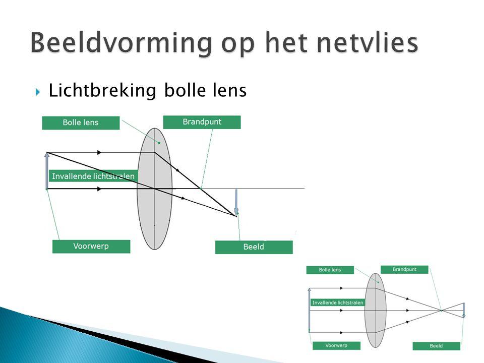  Lichtbreking bolle lens