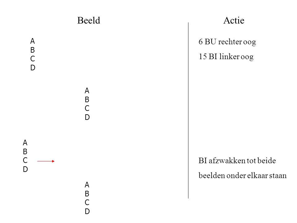 BeeldActie 6 BU rechter oog 15 BI linker oog BI afzwakken tot beide beelden onder elkaar staan ABCDABCD ABCDABCD ABCDABCD ABCDABCD