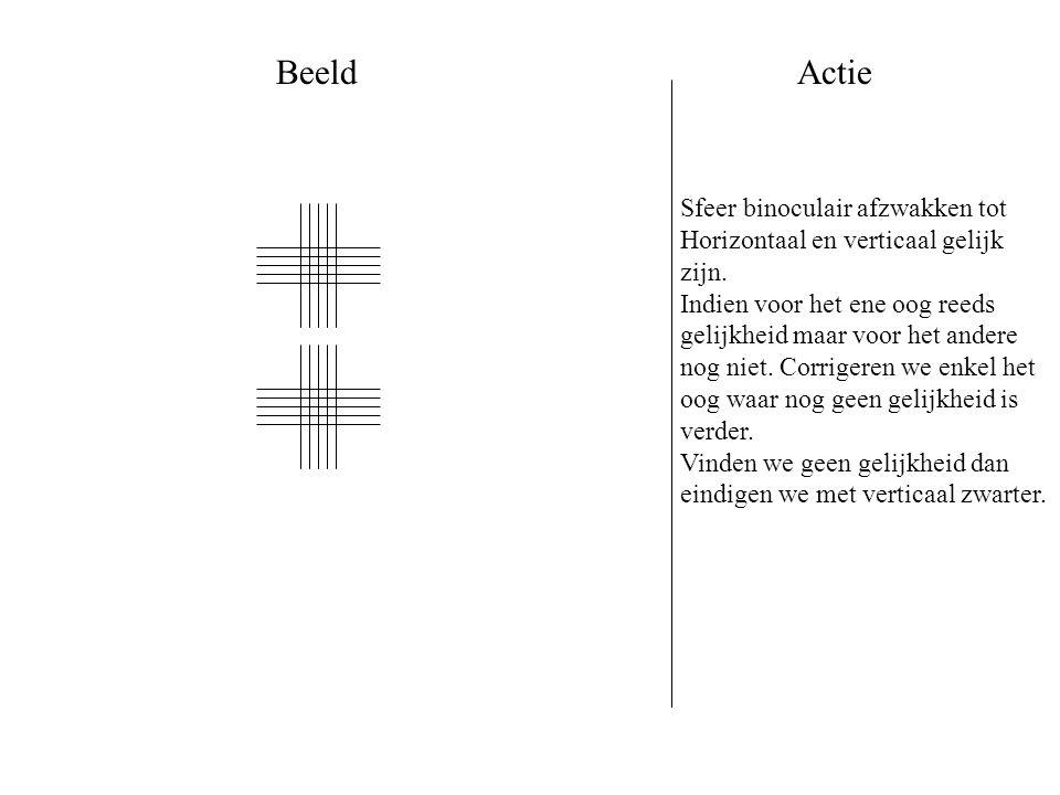 #15A Geïnduceerde horizontale foria door #14A Testafstand:40 cm Test:Kruisrooster of verticale letterrij Lenzen: #14A Prisma's:RO 6BU LO rotatieprisma: start 15 BI Andere:Vaste kruiscilinder – cil as 90 (beide ogen) Verlichting: gedimd
