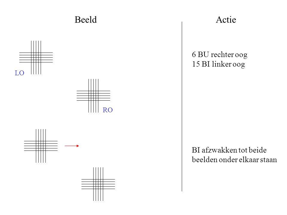 BeeldActie 6 BU rechter oog 15 BI linker oog BI afzwakken tot beide beelden onder elkaar staan RO LO