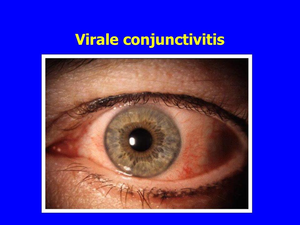 Virale conjunctivitis