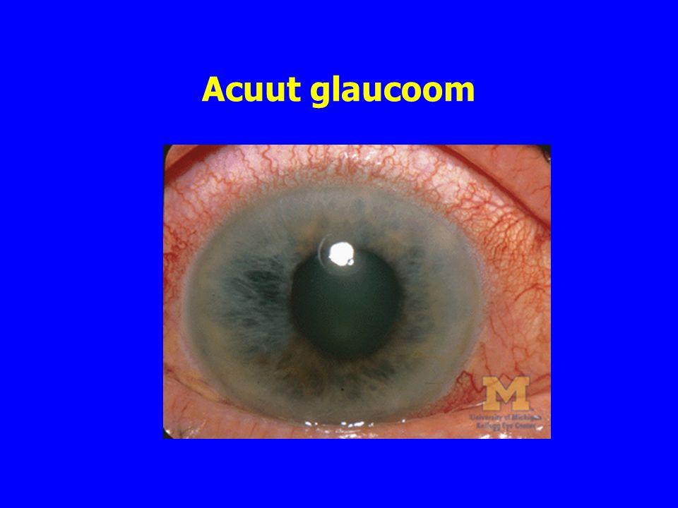 Acuut glaucoom