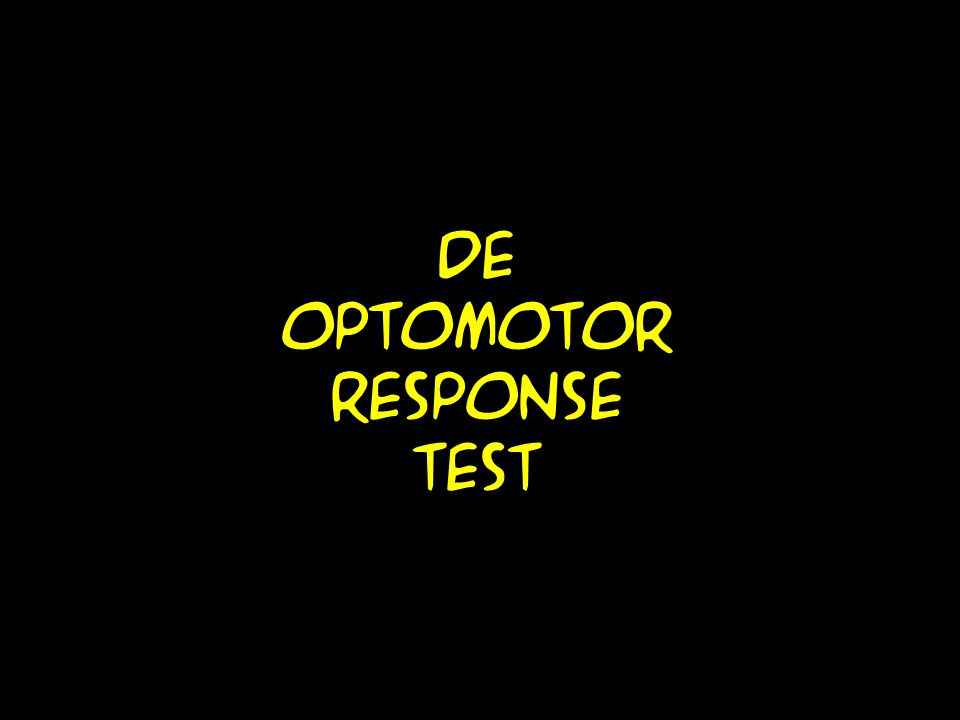 De optomotor response test