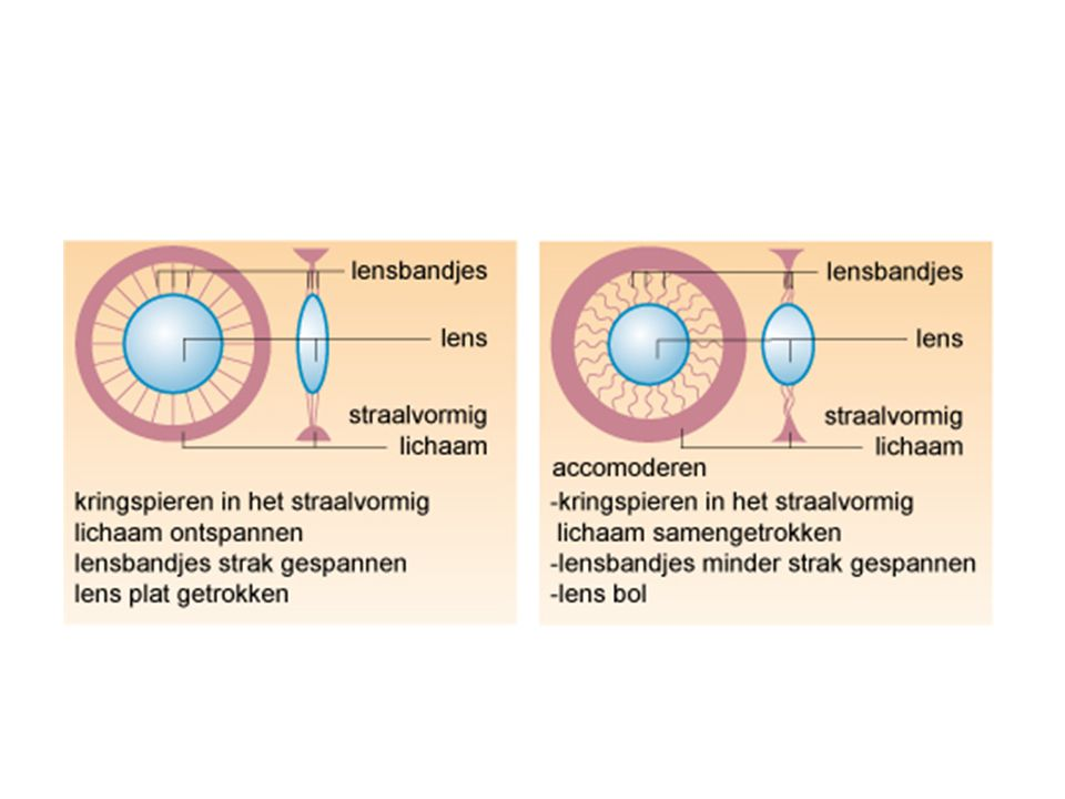 Afwijkingen Bijziendheid – Veraf slecht zicht – Dichtbij goed zicht Verziendheid – Veraf goed zicht – Dichtbij slecht zicht