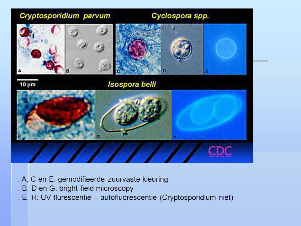 A, C en E: gemodifieerde zuurvaste kleuring.B, D en G: bright field microscopy.
