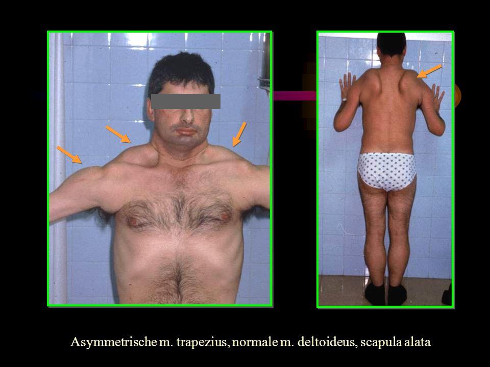 Asymmetrische m. trapezius, normale m. deltoideus, scapula alata