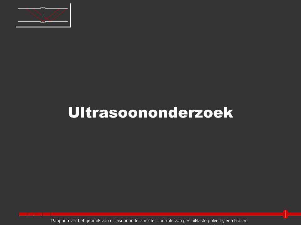 Ultrasoononderzoek