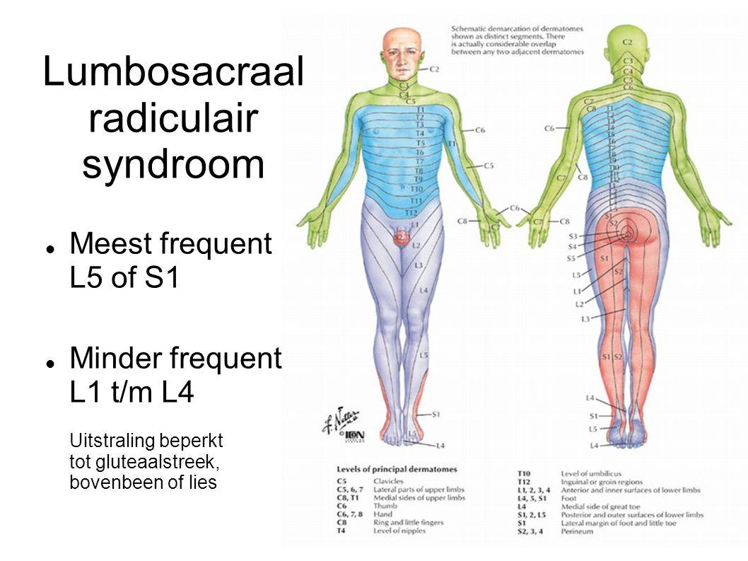 Lumbosacraal radiculair syndroom Meest frequent L5 of S1 Minder frequent L1 t/m L4 Uitstraling beperkt tot gluteaalstreek, bovenbeen of lies