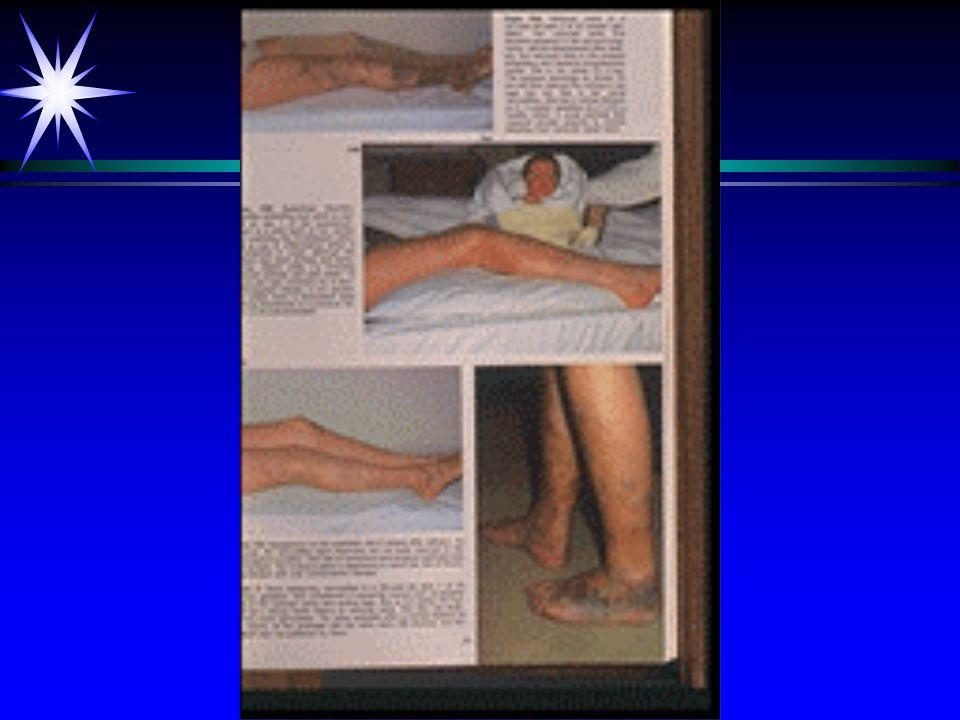 Trombose ä behandeling: ä anti-coagulantia Acenocoumarol ä daarna mobilisatie ä complicatie: ä embolie
