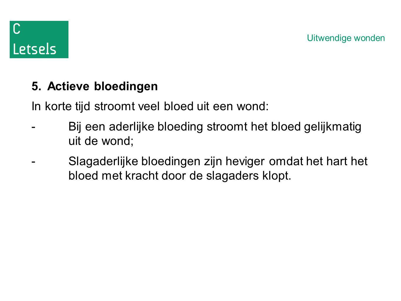 Uitwendige wonden 5.Actieve bloedingen In korte tijd stroomt veel bloed uit een wond: -Bij een aderlijke bloeding stroomt het bloed gelijkmatig uit de wond; -Slagaderlijke bloedingen zijn heviger omdat het hart het bloed met kracht door de slagaders klopt.