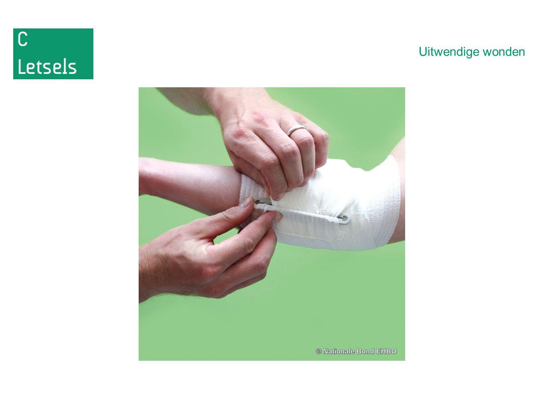6.Doordringende buikwonden en borstletsel -een wond die tot diep in de borstholte en/of buikwand doordringt; -bijvoorbeeld verwondingen door een kogel of mes.