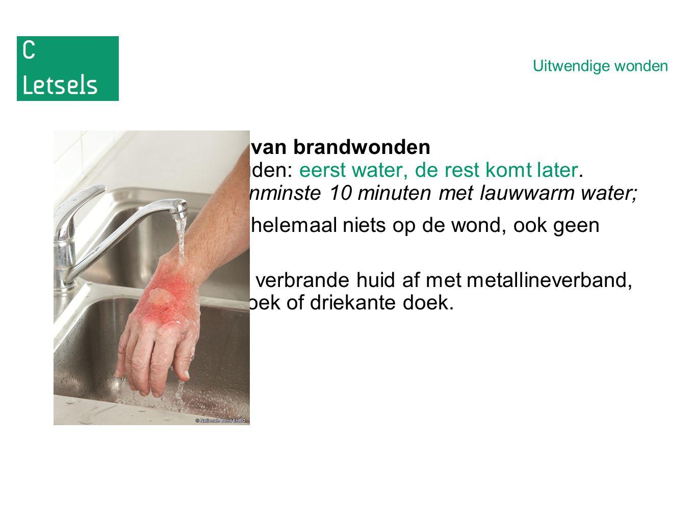 Uitwendige wonden Behandeling van brandwonden -Onthouden: eerst water, de rest komt later.