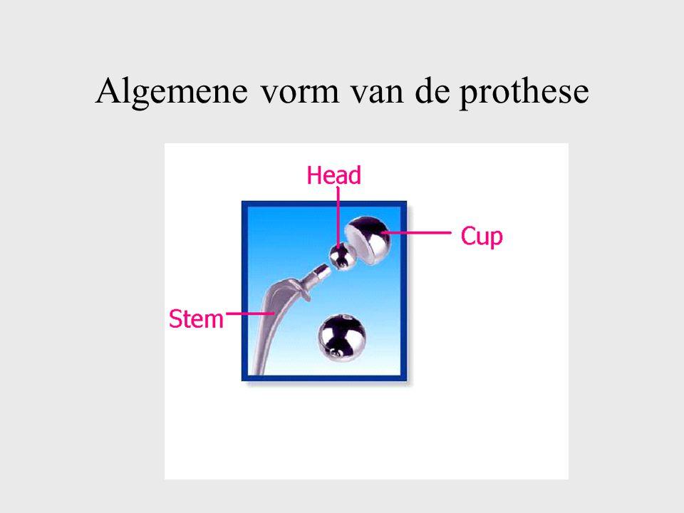 Algemene vorm van de prothese