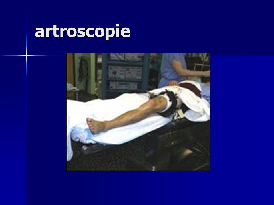 artroscopie