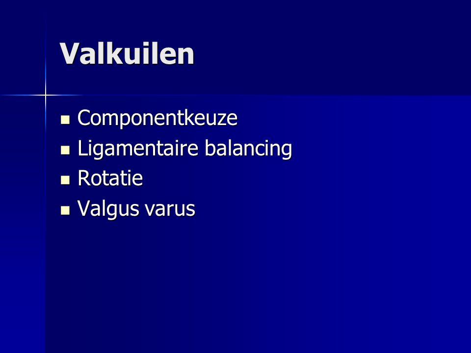Valkuilen Componentkeuze Componentkeuze Ligamentaire balancing Ligamentaire balancing Rotatie Rotatie Valgus varus Valgus varus