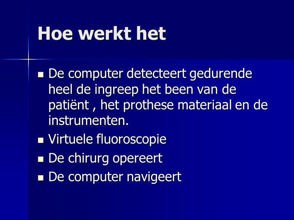 Hoe werkt het De computer detecteert gedurende heel de ingreep het been van de patiënt, het prothese materiaal en de instrumenten. De computer detecte