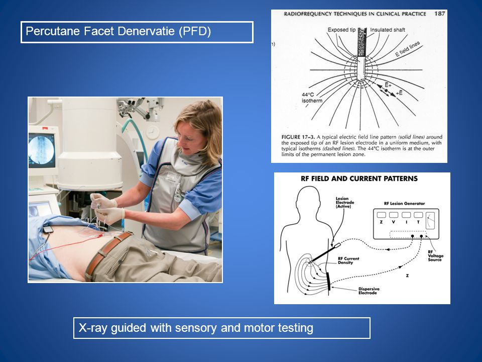 X-ray guided with sensory and motor testing Percutane Facet Denervatie (PFD)