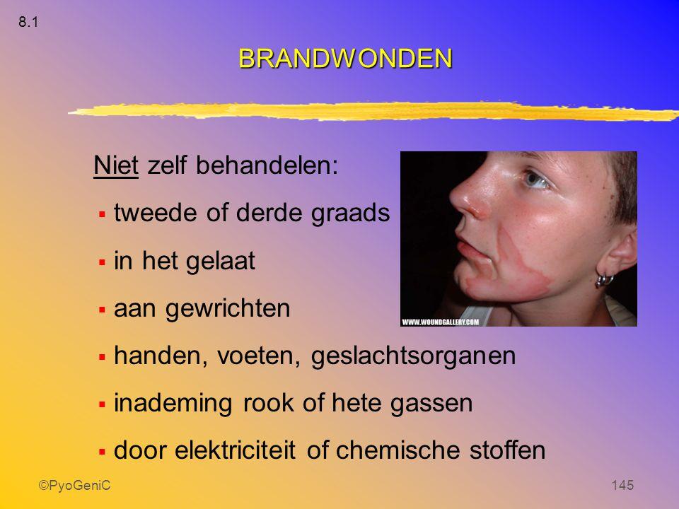 ©PyoGeniC145 Niet zelf behandelen:  tweede of derde graads  in het gelaat  aan gewrichten  handen, voeten, geslachtsorganen  inademing rook of he