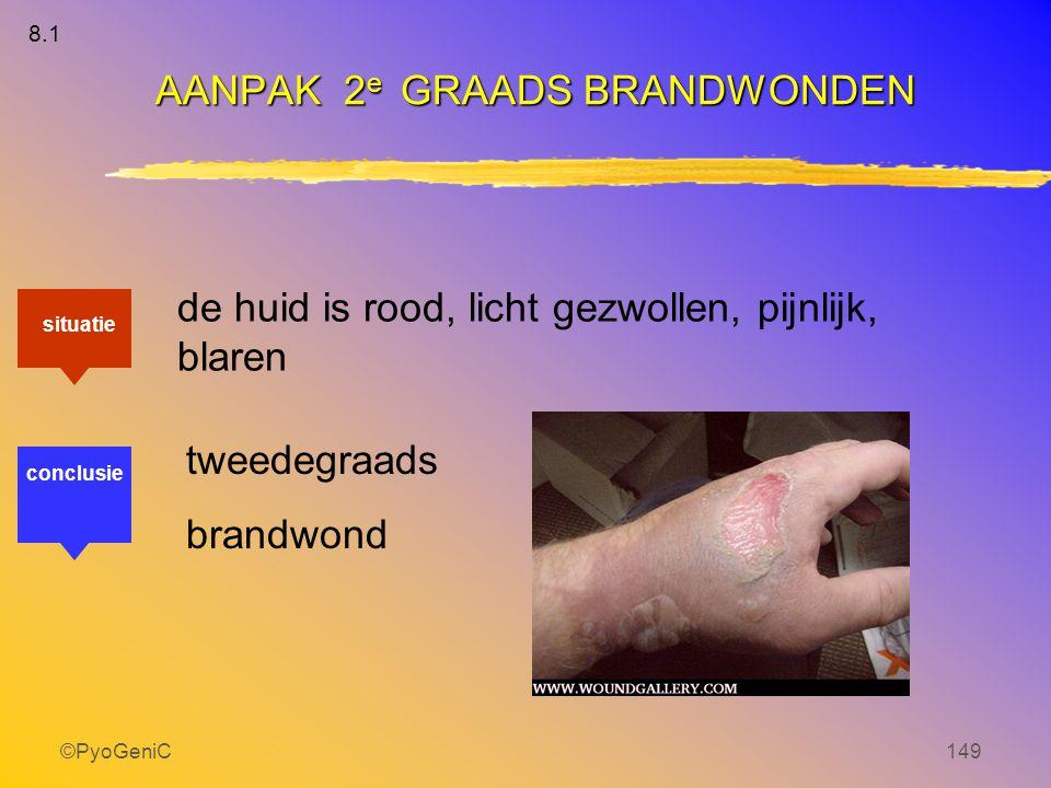 ©PyoGeniC149 de huid is rood, licht gezwollen, pijnlijk, blaren tweedegraads brandwond AANPAK 2 e GRAADS BRANDWONDEN situatie conclusie 8.1